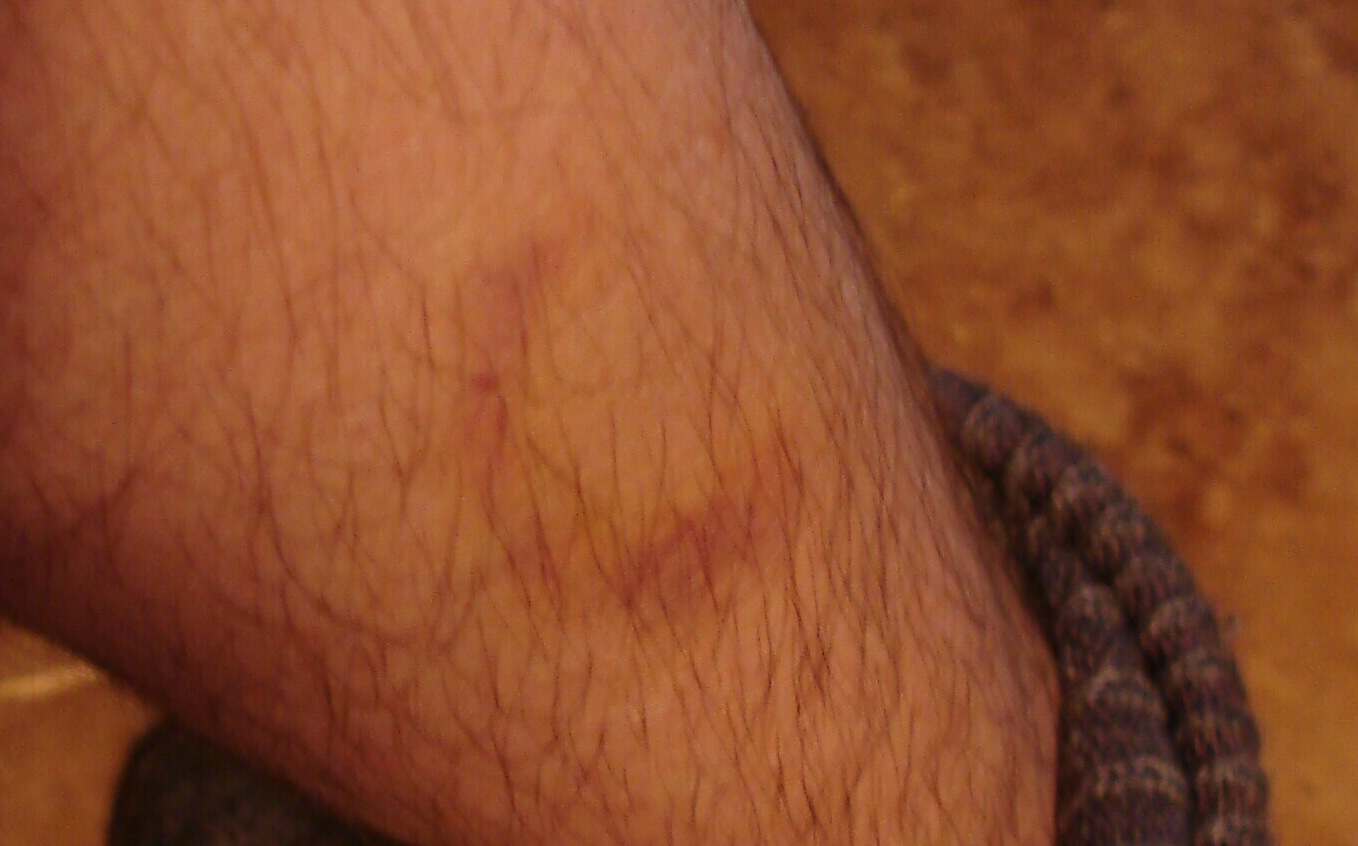 Two and a half weeks after a beam hit me while talking on the telephone.  I seem to have been controlled to not look at it and later not photograph it until it was almost healed.