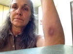 This bruise showed up ten days after another very similar showed up on the back of my leg.  No explanation except...